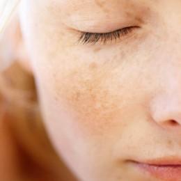 Microagulhamento para Melasma