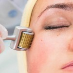 Microagulhamento para Cicatriz de Acne