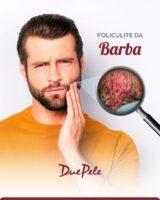 Foliculite na Barba